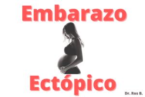 embarazo ectopico, síntomas y tratamiento