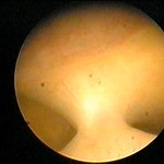 Adhrencia uterina